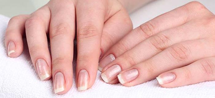 Белые пятная на ногтях, причины и лечение
