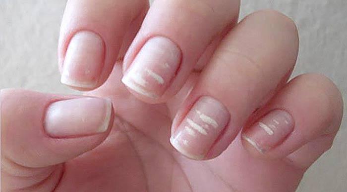 Белые пятна на ногтях: причины и лечение