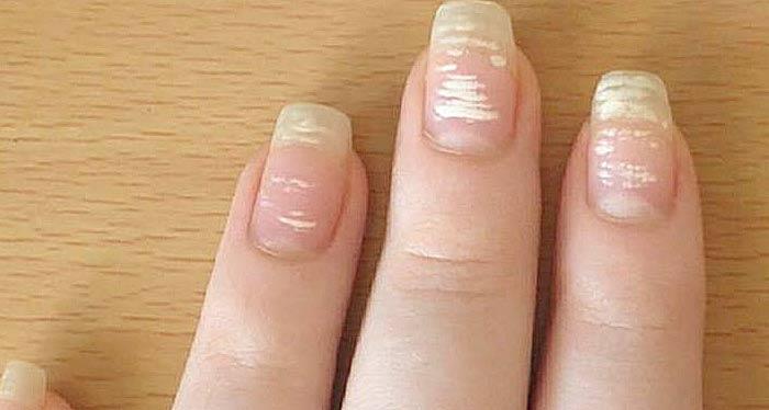 Белые пятна, полоски на ногтях