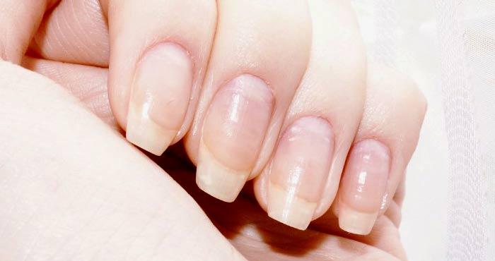 Почему слоятся ногти